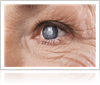 Important facts about Glaucoma by Gerstein Eye Institute in Chicago